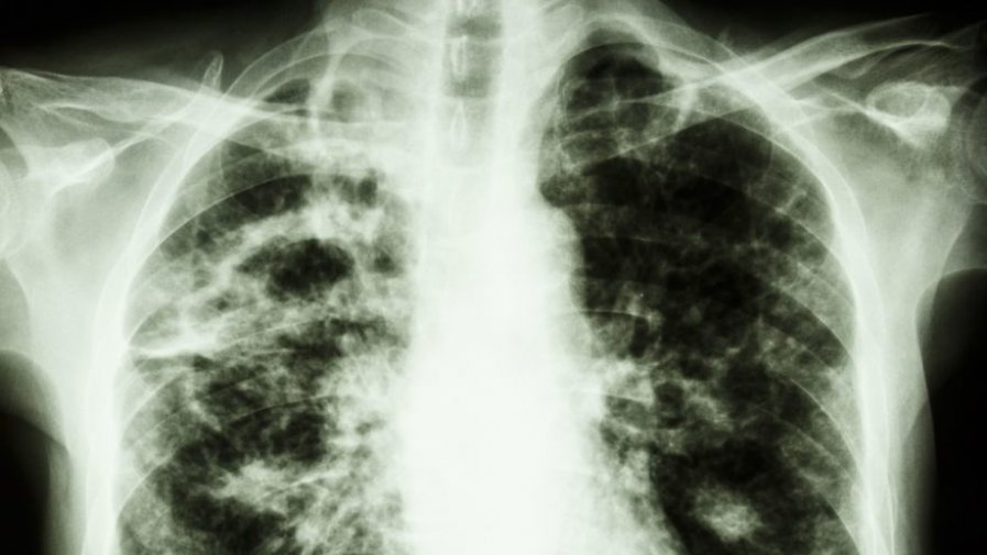Przebadaj się na obecność gruźlicy